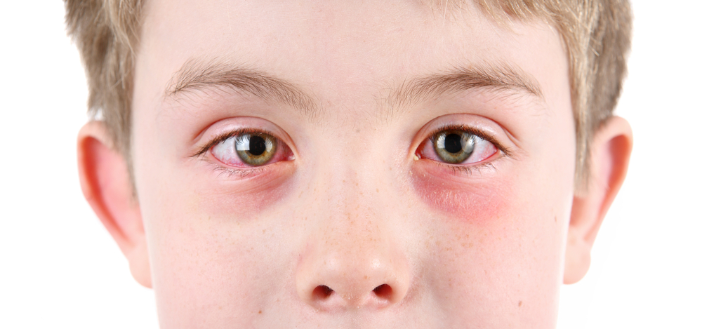 When Do You Need to See Your Eye Doctor in Rohnert Park About Pinkeye?
